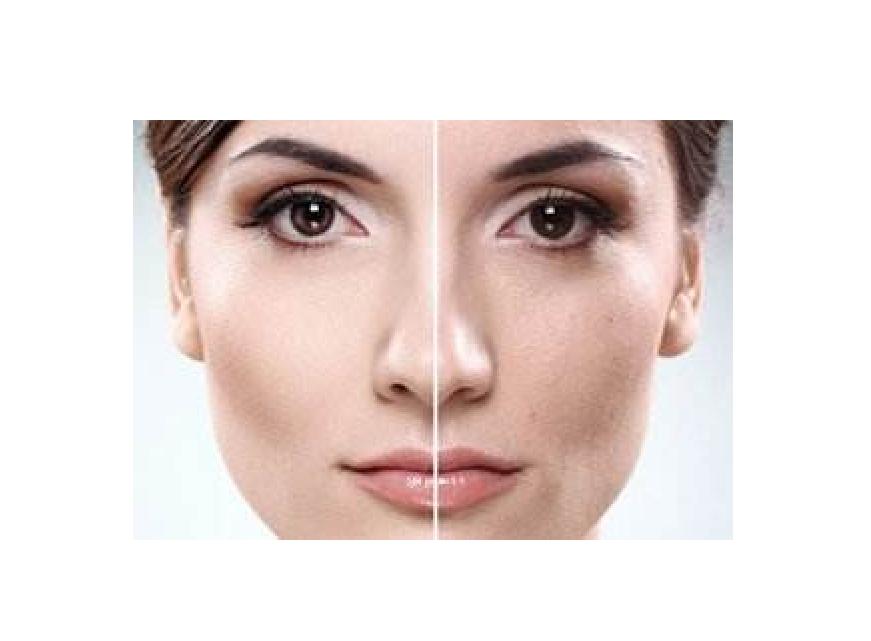 如何改善粗糙的皮肤问题?